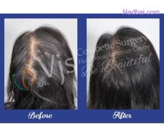 Hair Transplant in Visakhapatnam - vjclinics