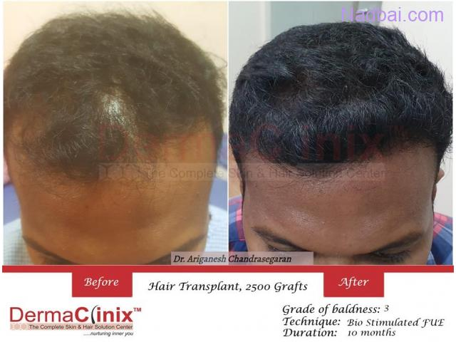 Hair Transplant Center in Chennai