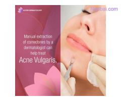Get Clear and Glowing Skin with Best Acne Treatment in Gurgaon