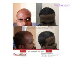 Best Hair Transplantation in Chennai