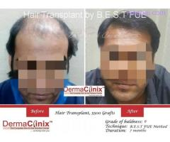 The Excellent And Result Oriented Hair Transplant in Delhi